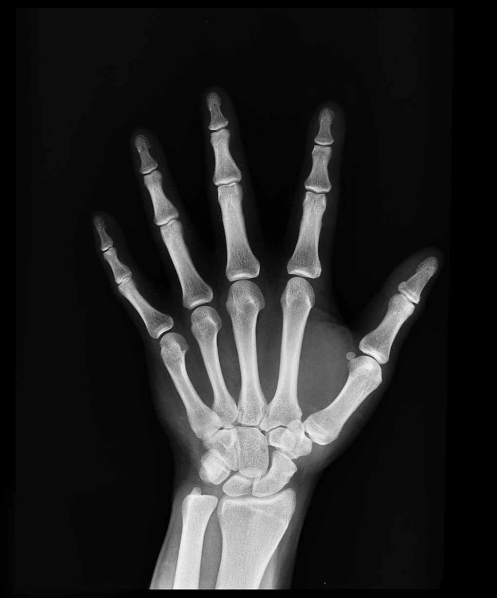 black and white bones hand x ray