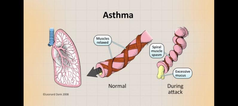 asthmapathology.png
