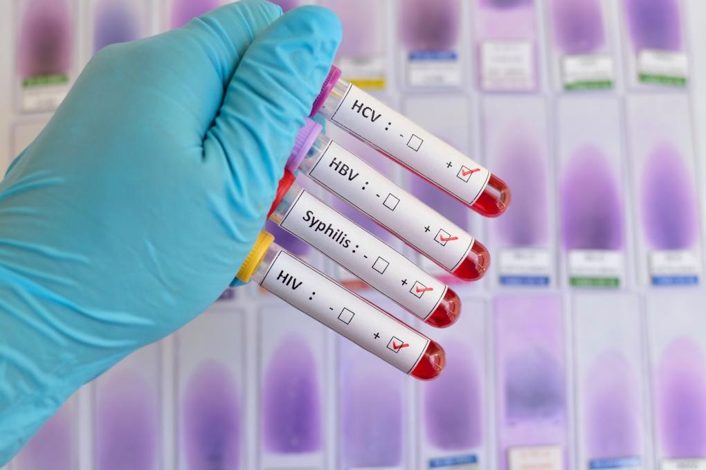 bloodtestHIVsyphilisistock.jpg