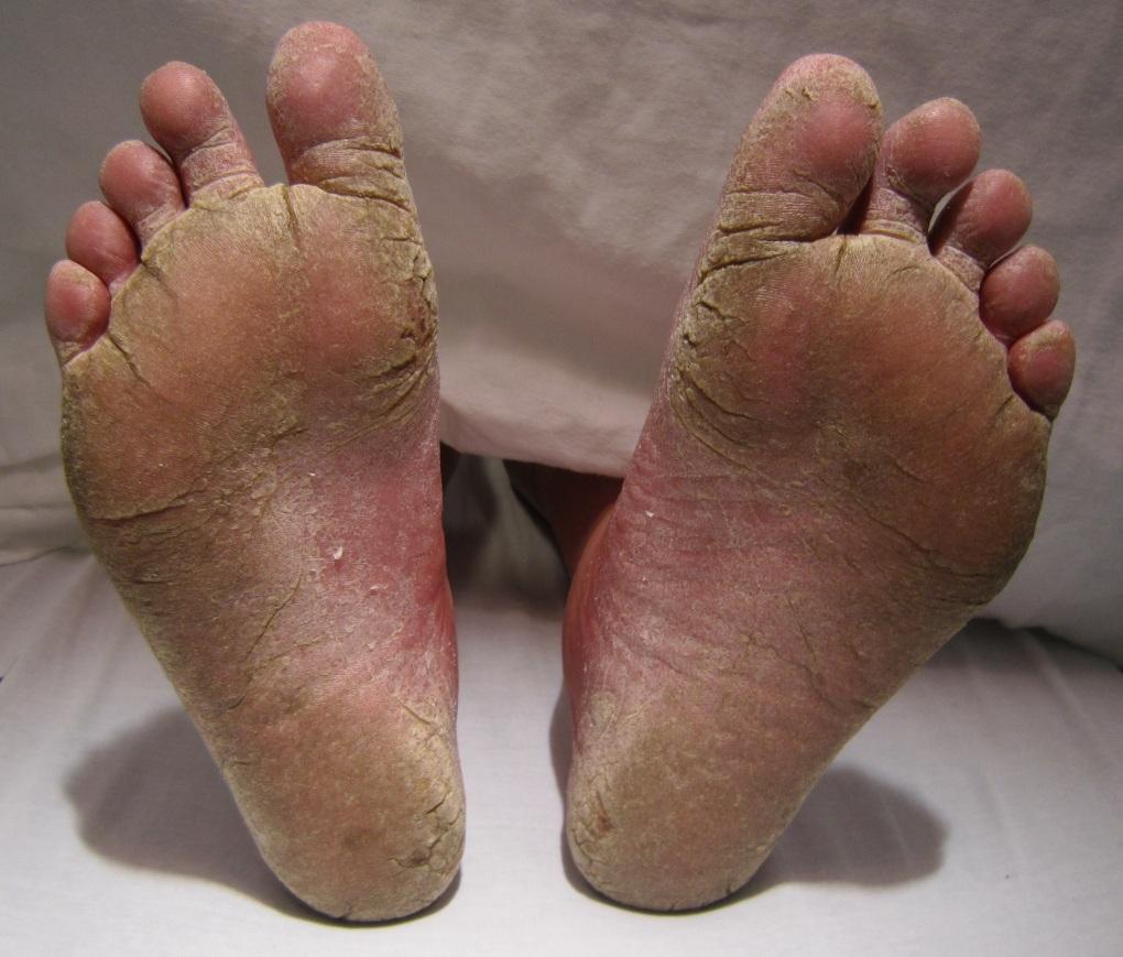 FeetFungal.jpeg