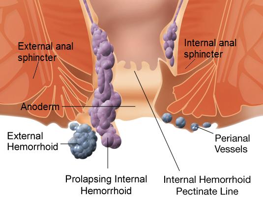 Internal_and_external_hemorrhoids.png